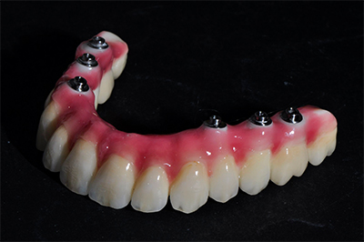 Vaste brug tanden